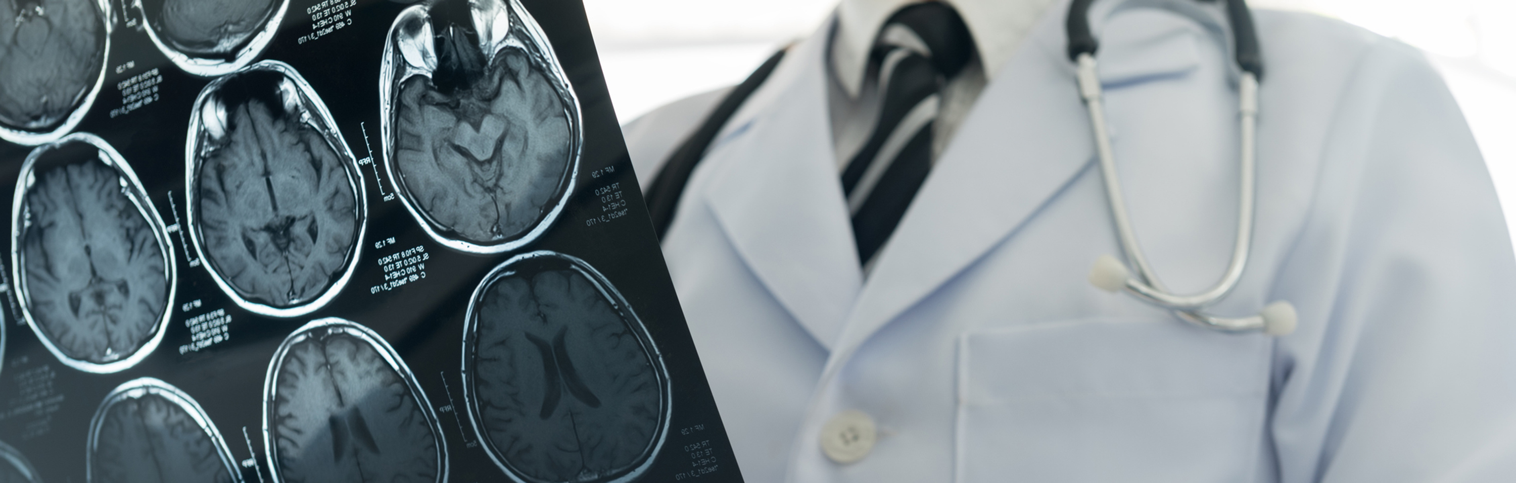 Closeup of physician reviewing brain scans.