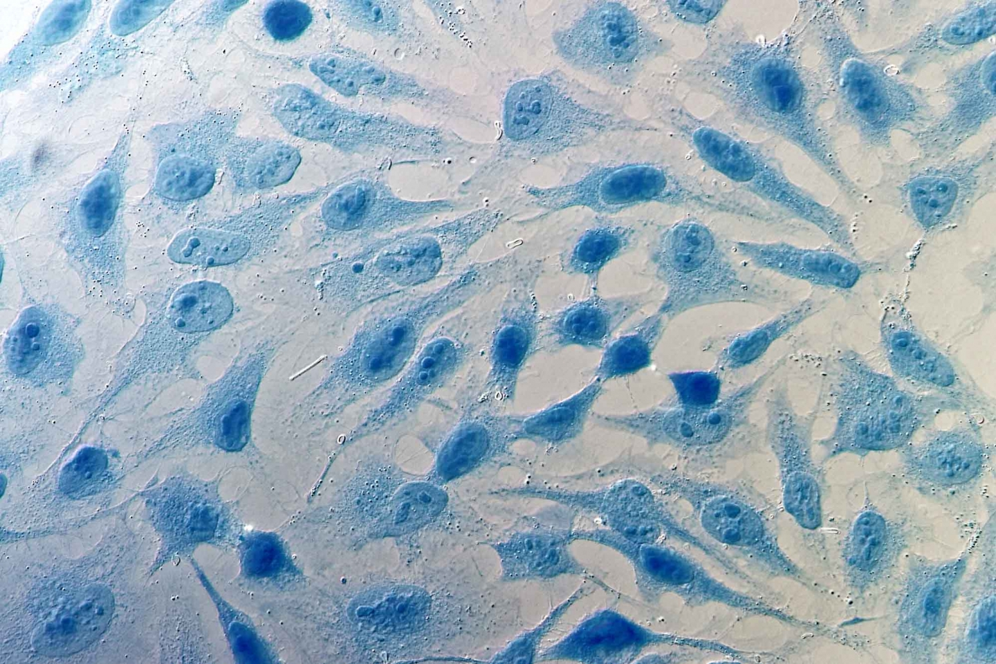 HeLa cervical cancer cells dyed blue