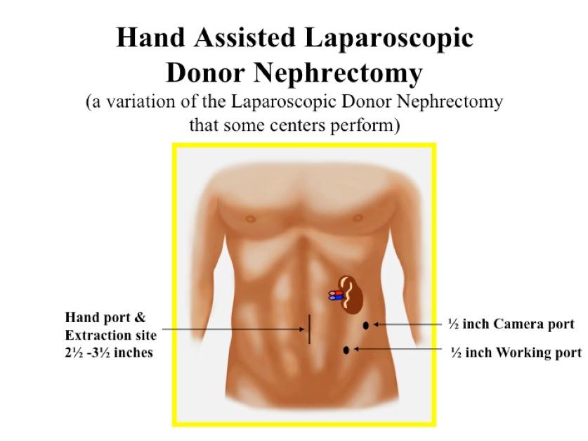 Illustration of hand assisted laparoscopic donor nephrectomy