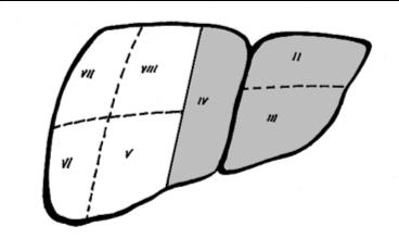 Diagram of a left hepatectomy