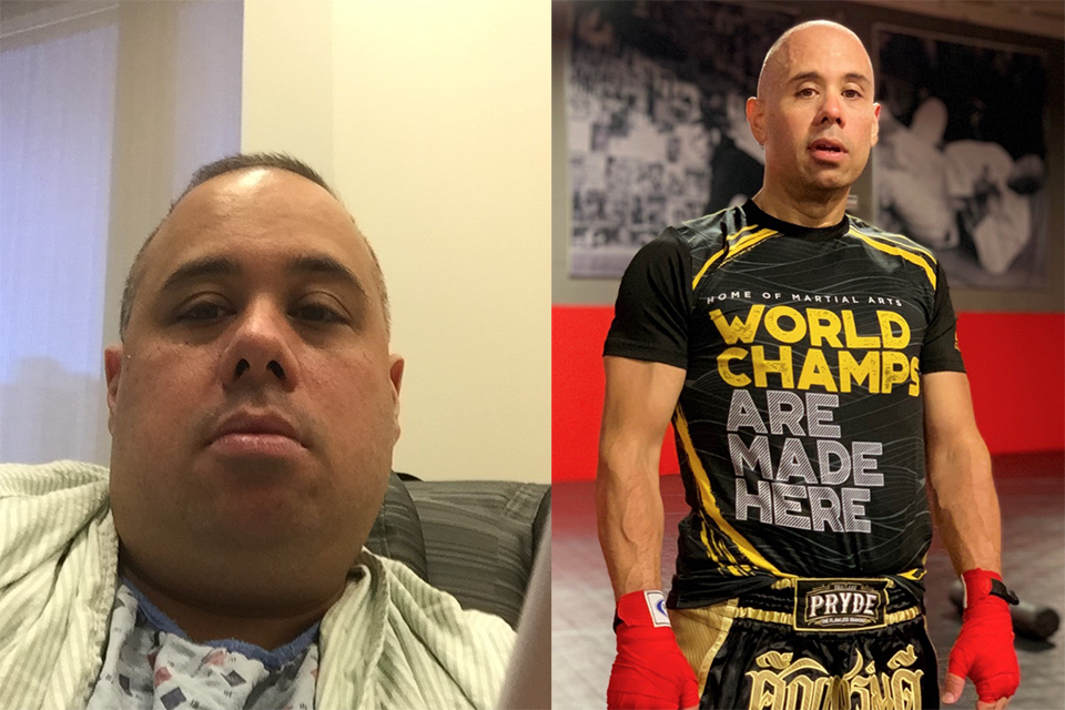 Before and after photo of a patient who underwent bariatric surgery at Weill Cornell Medicine