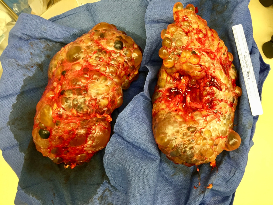 Polycystic Kidneys Removed from Transplant Recipient