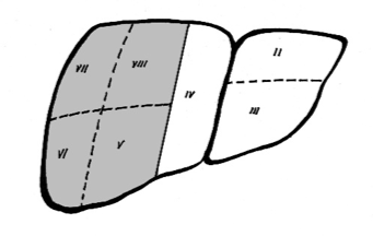 Diagram of a right hepatectomy