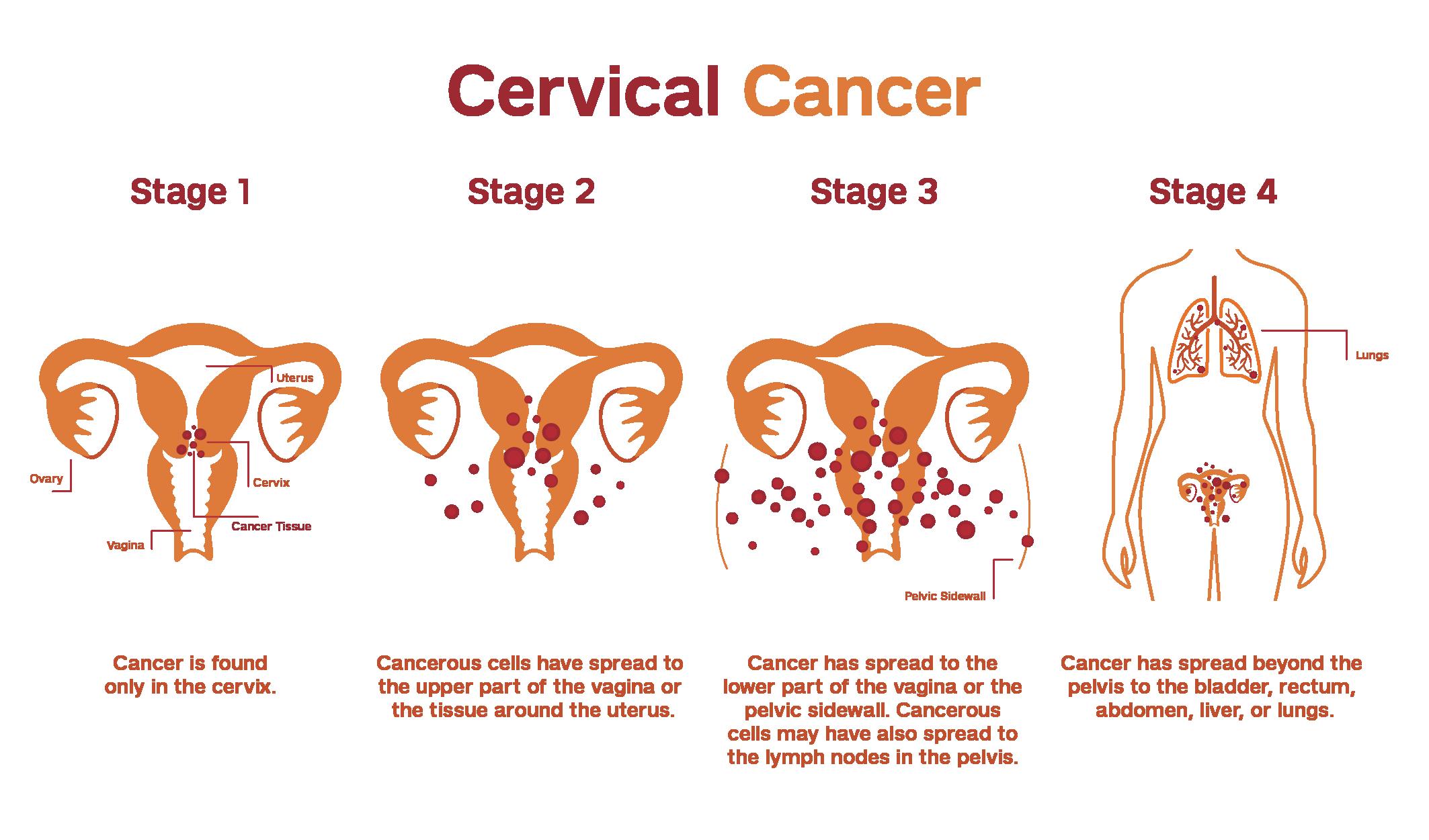 Illustration explaining the staging of cervical cancer