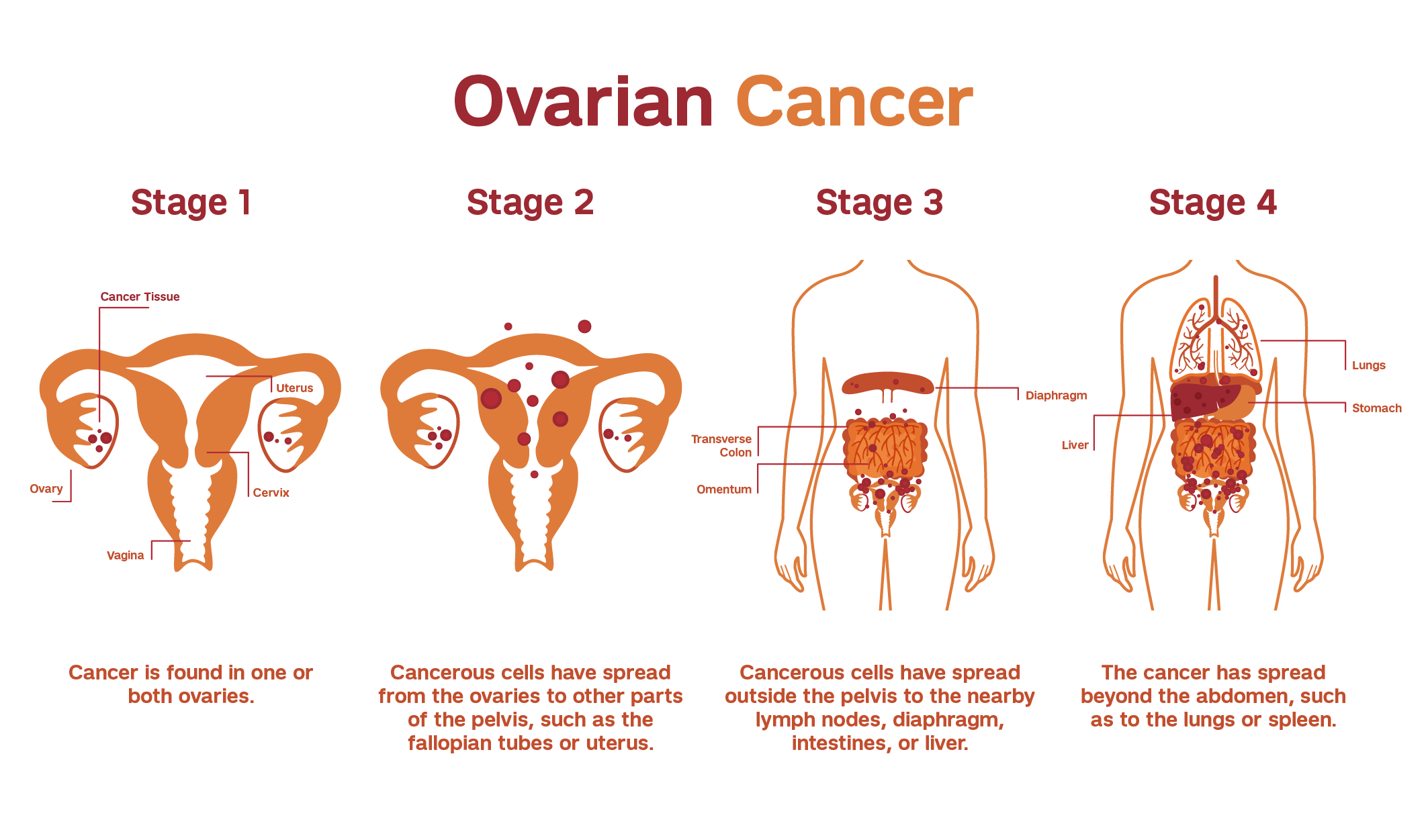 Illustration explaining the staging of ovarian cancer