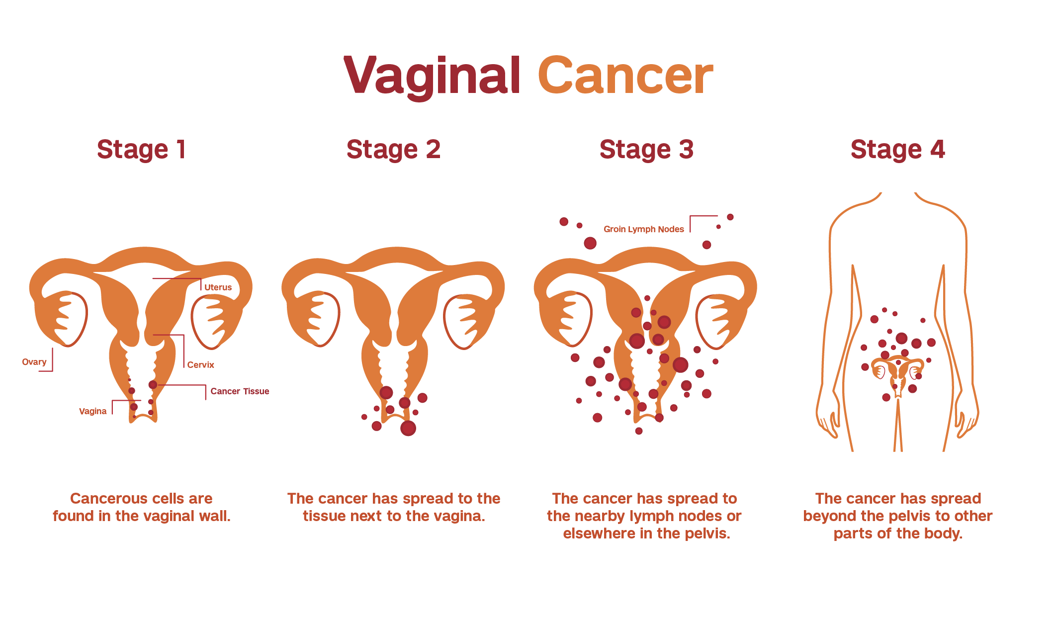 Illustration explaining the staging of vaginal cancer