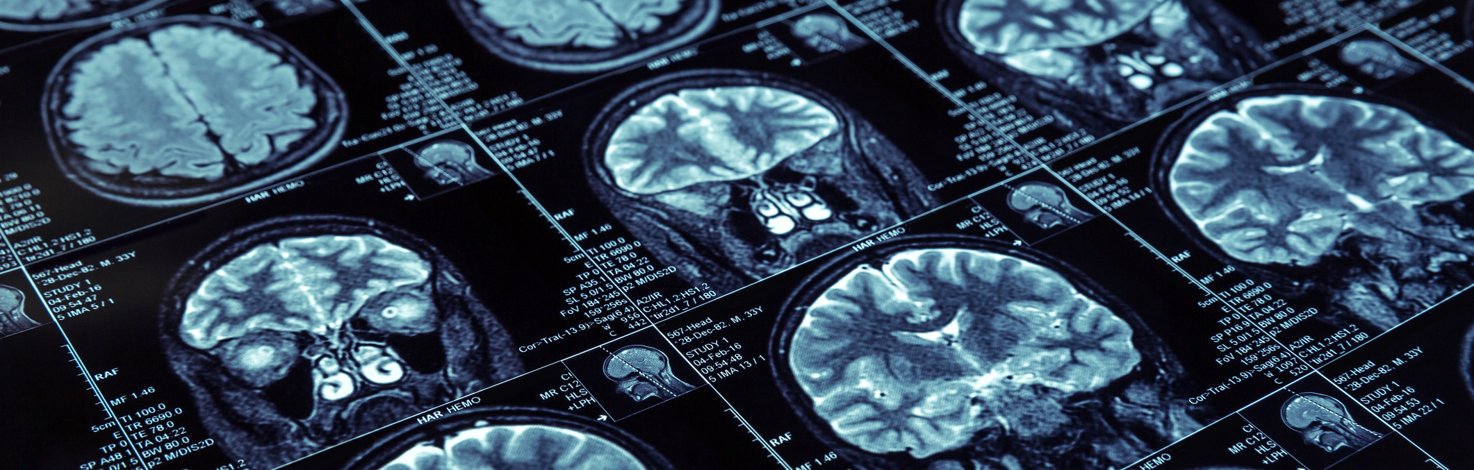 Close up of brain scans